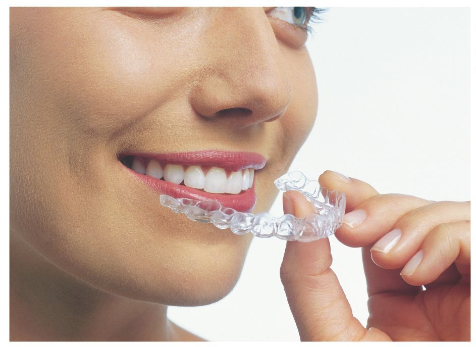 Oakland Dental Specialty adult invisalign braces